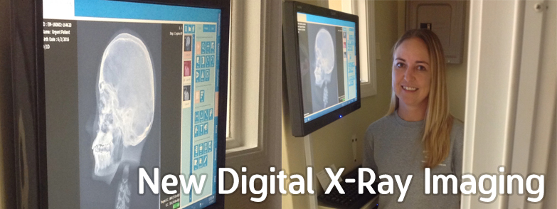 Digital Xray Imaging